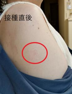 PADM会員さんのワクチン接種レポート